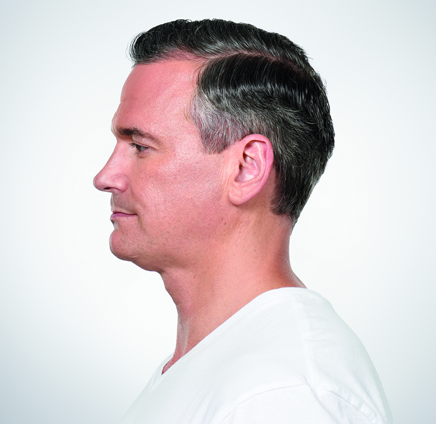 Appearance-Center-Newport-Beach-Fashion-Island-Kybella-Neck-Double-Chin-Reduction-Daines-Fleming-Joseph-Madorsky (7)
