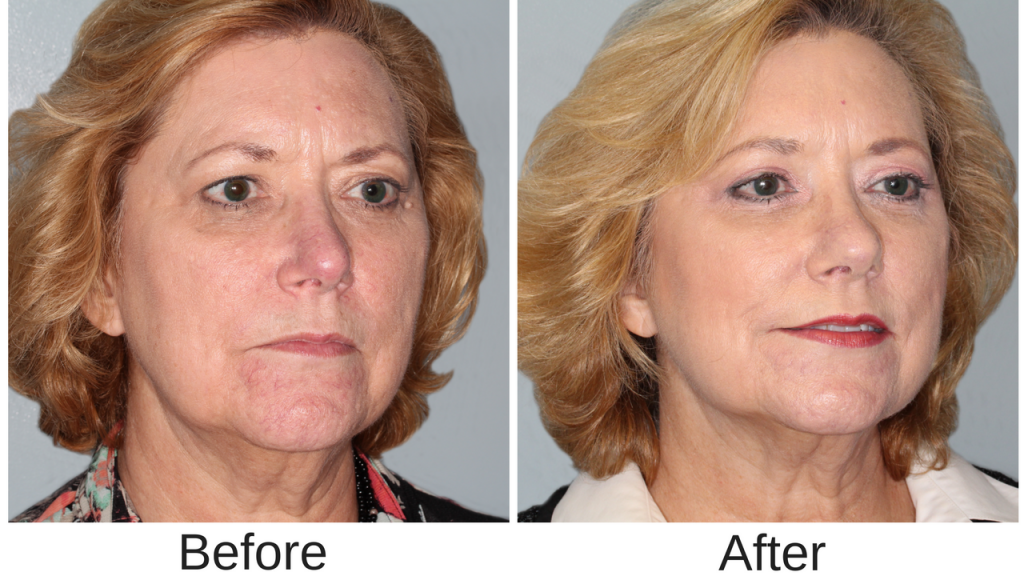 Center Facial Newport Plastic Surgery