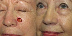 Basal-Cell-Carcinoma-Cheek-Skin-Cancer-Reconstructive-Surgery-Center