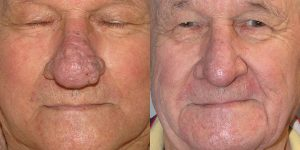 Before-After-Rhinophyma-Appearance-Center-Newport-Beach-Orange-County-Simon-Madorsky-MD