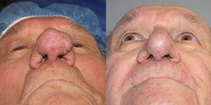 Before-After-Rhinophyma-Appearance-Center-Newport-Beach-Orange-County-Simon-Madorsky-MD2