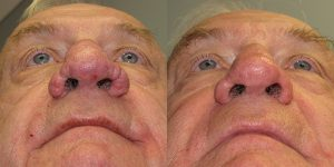 Before-After-Rhinophyma-Appearance-Center-Newport-Beach-Orange-County-Simon-Madorsky-MD2.1