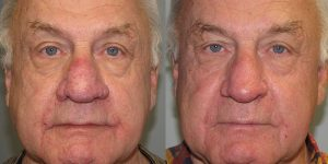 Before-After-Rhinophyma-Appearance-Center-Newport-Beach-Orange-County-Simon-Madorsky-MD2.2