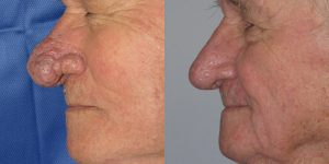 Before-After-Rhinophyma-Appearance-Center-Newport-Beach-Orange-County-Simon-Madorsky-MD3