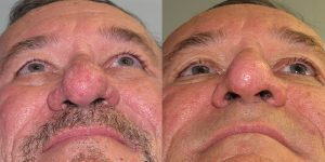 Before-After-Rhinophyma-Appearance-Center-Newport-Beach-Orange-County-Simon-Madorsky-MD3.1
