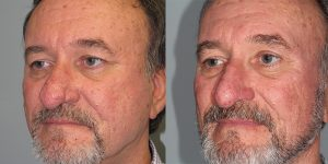 Before-After-Rhinophyma-Appearance-Center-Newport-Beach-Orange-County-Simon-Madorsky-MD3.2