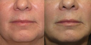 Before-And-After-Lip-Enhancement-Lip-Filler-Cosmetic-Surgery-Newport-Beach-1