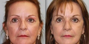 Chemical-Peel-Steven-Daines-MD-Appearance-Center-Newport-Beach-Orange-County-Plastic-Surgery.1