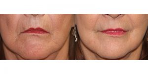 Chemical-Peel-Steven-Daines-MD-Appearance-Center-Newport-Beach-Orange-County-Plastic-Surgery.1.2