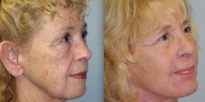 Chemical-Peel-Steven-Daines-MD-Appearance-Center-Newport-Beach-Orange-County-Plastic-Surgery.4