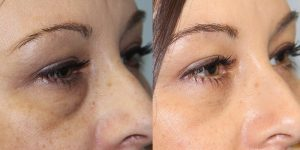 Eyelid-Rejuvenation-Steven-Daines-MD-Appearance-Center-Newport-Beach-Orange-County-Plastic-Surgery.1.2
