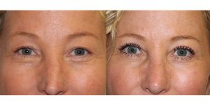 Eyelid-Rejuvenation-Steven-Daines-MD-Appearance-Center-Newport-Beach-Orange-County-Plastic-Surgery.10.1