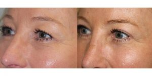 Eyelid-Rejuvenation-Steven-Daines-MD-Appearance-Center-Newport-Beach-Orange-County-Plastic-Surgery.10.2