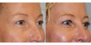 Eyelid-Rejuvenation-Steven-Daines-MD-Appearance-Center-Newport-Beach-Orange-County-Plastic-Surgery.10.3