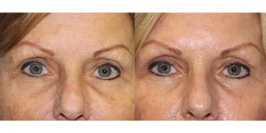 Eyelid-Rejuvenation-Steven-Daines-MD-Appearance-Center-Newport-Beach-Orange-County-Plastic-Surgery.11.1