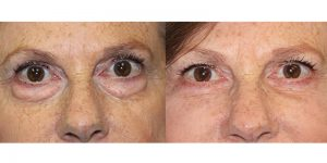 Eyelid-Rejuvenation-Steven-Daines-MD-Appearance-Center-Newport-Beach-Orange-County-Plastic-Surgery.2.1