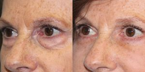 Eyelid-Rejuvenation-Steven-Daines-MD-Appearance-Center-Newport-Beach-Orange-County-Plastic-Surgery.2.3