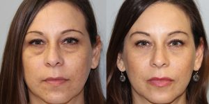 Eyelid-Rejuvenation-Steven-Daines-MD-Appearance-Center-Newport-Beach-Orange-County-Plastic-Surgery.3