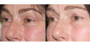 Eyelid-Rejuvenation-Steven-Daines-MD-Appearance-Center-Newport-Beach-Orange-County-Plastic-Surgery.3.1