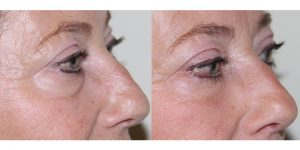 Eyelid-Rejuvenation-Steven-Daines-MD-Appearance-Center-Newport-Beach-Orange-County-Plastic-Surgery.4.1