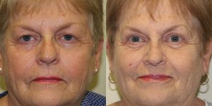 Eyelid-Rejuvenation-Steven-Daines-MD-Appearance-Center-Newport-Beach-Orange-County-Plastic-Surgery.5.1