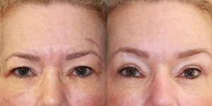 Eyelid-Rejuvenation-Steven-Daines-MD-Appearance-Center-Newport-Beach-Orange-County-Plastic-Surgery.6.1