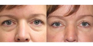 Eyelid-Rejuvenation-Steven-Daines-MD-Appearance-Center-Newport-Beach-Orange-County-Plastic-Surgery.7.1