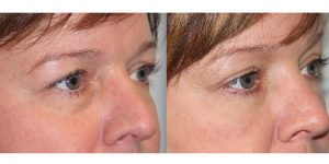 Eyelid-Rejuvenation-Steven-Daines-MD-Appearance-Center-Newport-Beach-Orange-County-Plastic-Surgery.7.2