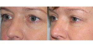Eyelid-Rejuvenation-Steven-Daines-MD-Appearance-Center-Newport-Beach-Orange-County-Plastic-Surgery.7.3