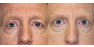 Eyelid-Rejuvenation-Steven-Daines-MD-Appearance-Center-Newport-Beach-Orange-County-Plastic-Surgery.8.1