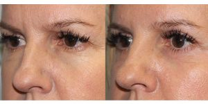 Eyelid-Rejuvenation-Steven-Daines-MD-Appearance-Center-Newport-Beach-Orange-County-Plastic-Surgery.9.3