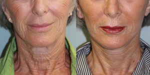 Face-and-Neck-Lift-Steven-Daines-MD-Appearance-Center-Newport-Beach-Orange-County-Plastic-Surgery.10.1