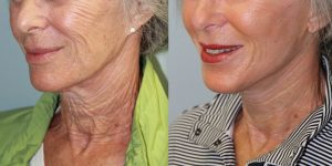 Face-and-Neck-Lift-Steven-Daines-MD-Appearance-Center-Newport-Beach-Orange-County-Plastic-Surgery.10.3