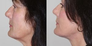 Face-and-Neck-Lift-Steven-Daines-MD-Appearance-Center-Newport-Beach-Orange-County-Plastic-Surgery.11.2