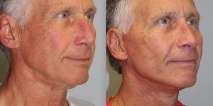 Face-and-Neck-Lift-Steven-Daines-MD-Appearance-Center-Newport-Beach-Orange-County-Plastic-Surgery.12.1