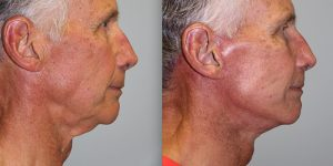 Face-and-Neck-Lift-Steven-Daines-MD-Appearance-Center-Newport-Beach-Orange-County-Plastic-Surgery.12.2