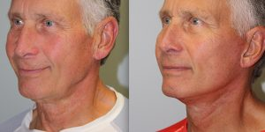 Face-and-Neck-Lift-Steven-Daines-MD-Appearance-Center-Newport-Beach-Orange-County-Plastic-Surgery.12.3