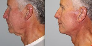 Face-and-Neck-Lift-Steven-Daines-MD-Appearance-Center-Newport-Beach-Orange-County-Plastic-Surgery.12.4