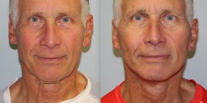 Face-and-Neck-Lift-Steven-Daines-MD-Appearance-Center-Newport-Beach-Orange-County-Plastic-Surgery.12.5