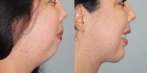 Face-and-Neck-Lift-Steven-Daines-MD-Appearance-Center-Newport-Beach-Orange-County-Plastic-Surgery.13 (1)