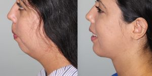Face-and-Neck-Lift-Steven-Daines-MD-Appearance-Center-Newport-Beach-Orange-County-Plastic-Surgery.13 (2)