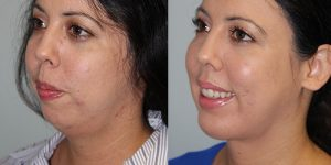 Face-and-Neck-Lift-Steven-Daines-MD-Appearance-Center-Newport-Beach-Orange-County-Plastic-Surgery.13 (3)