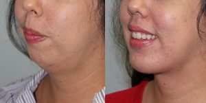 Face-and-Neck-Lift-Steven-Daines-MD-Appearance-Center-Newport-Beach-Orange-County-Plastic-Surgery.13 (5)