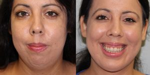 Face-and-Neck-Lift-Steven-Daines-MD-Appearance-Center-Newport-Beach-Orange-County-Plastic-Surgery.13 (7)