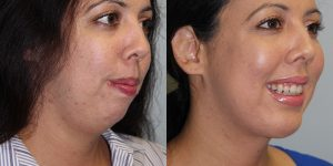 Face-and-Neck-Lift-Steven-Daines-MD-Appearance-Center-Newport-Beach-Orange-County-Plastic-Surgery.13 (8)