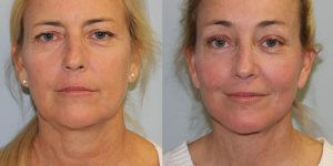 Face-and-Neck-Lift-Steven-Daines-MD-Appearance-Center-Newport-Beach-Orange-County-Plastic-Surgery.14.1