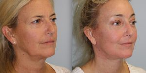 Face-and-Neck-Lift-Steven-Daines-MD-Appearance-Center-Newport-Beach-Orange-County-Plastic-Surgery.14.2