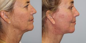 Face-and-Neck-Lift-Steven-Daines-MD-Appearance-Center-Newport-Beach-Orange-County-Plastic-Surgery.14.3