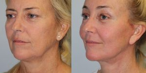 Face-and-Neck-Lift-Steven-Daines-MD-Appearance-Center-Newport-Beach-Orange-County-Plastic-Surgery.14.4
