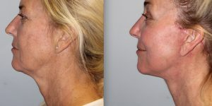 Face-and-Neck-Lift-Steven-Daines-MD-Appearance-Center-Newport-Beach-Orange-County-Plastic-Surgery.14.5